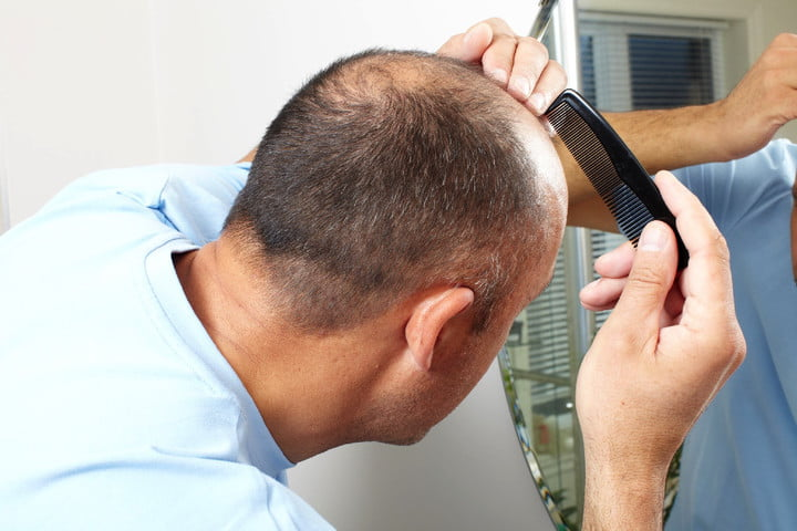 Stem cell therapy work could solve hairy problem, banish baldness for good