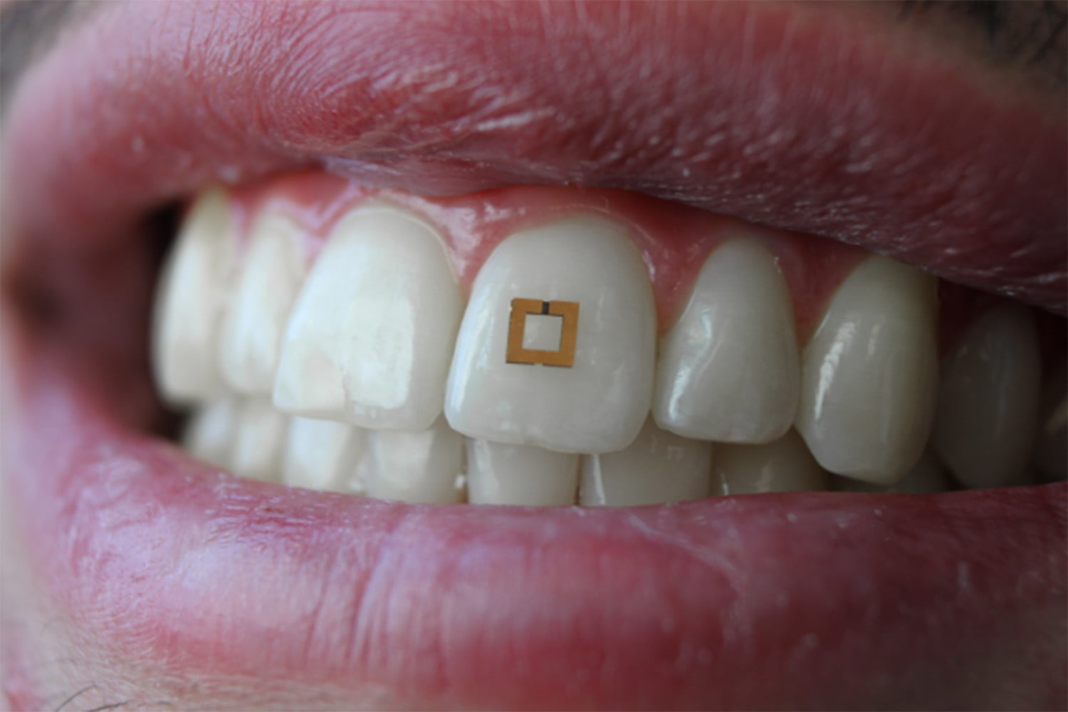 Tooth Mounted Sensors Track Your Diet From Inside Your Mouth
